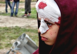 Child victim in Syria