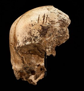 "Four shallow chop marks on the top of the girl's skull, evidence of cannibalism during the ""starving time"" over the winter of 1609-1610. (Smithsonian Institution / Don Hurlbert)"