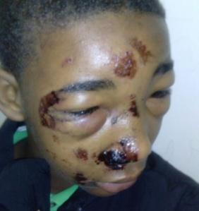 teen+police+brutality+2