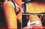 0912-adrian-peterson-son-injuries-5